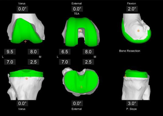 The Difference Between Conventional Surgery and Robotic Joint Replacement